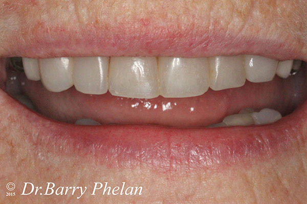 2b-Resin-Veneers-rebuilding-severely-worn-teeth-and-increasing-lower-facial-height-followed-with-placement-of-dentures-and-provision-of-nightguard- (1)
