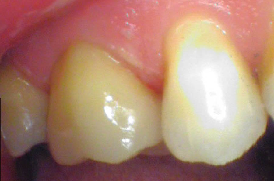 3-Resolution-of-symptoms-post-cementation-of-ceramic-overlayCROP