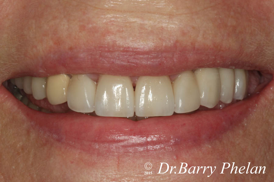 Case-5a.Post-Rehabilitation-with-Combination-of-Ceramic-Veneers-on-the-front-4-teeth-with-Implant-supported-3-unit-bridge-on-the-upper-left